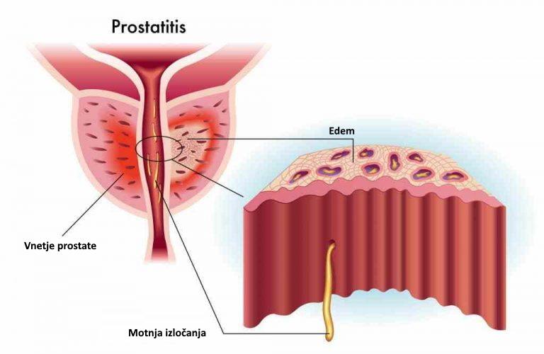 Prostatitis je vnetje prostate
